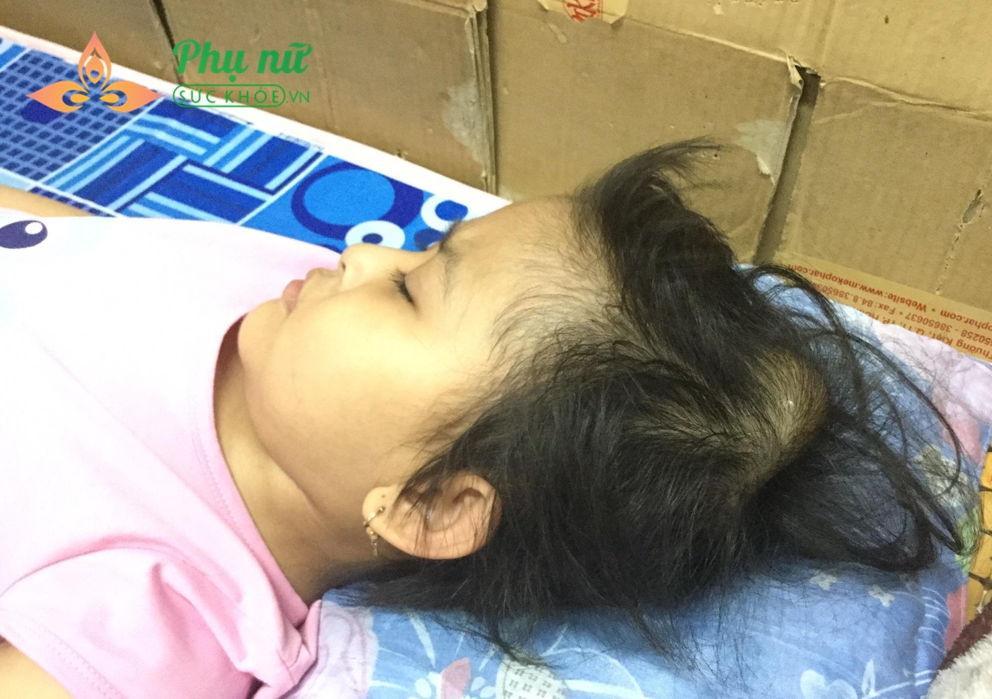 Bệnh ung thư thận của bé Hiền đã di căn ra khắp các cơ quan, hình thành khối u ác tính ở não, đe dọa tính mạng