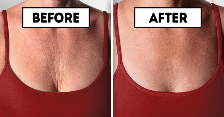 Giảm nếp nhăn vùng da ngực nhờ 7 cách làm đơn giản mỗi ngày - Ảnh 5