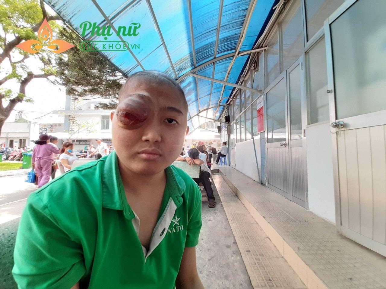 Căn bệnh u não ác tính đã di căn khiến mắt Thanh sưng to như quả bóng bàn