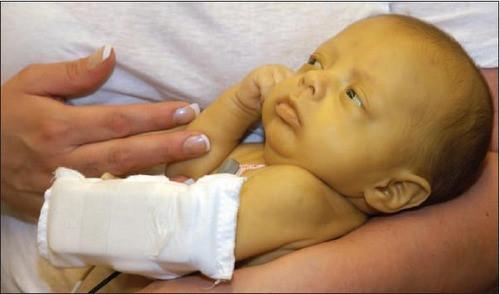 Trẻ sơ sinh vàng da, khi nào là nguy hiểm? - Ảnh 1