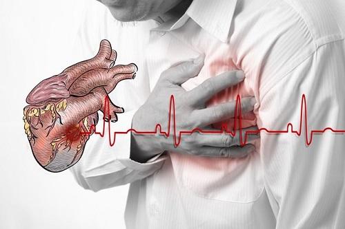 Không được bỏ qua những triệu chứng này của bệnh tim  - Ảnh 1