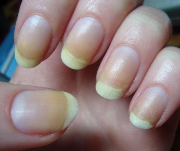 Cách trị móng tay bị ố vàng đơn giản