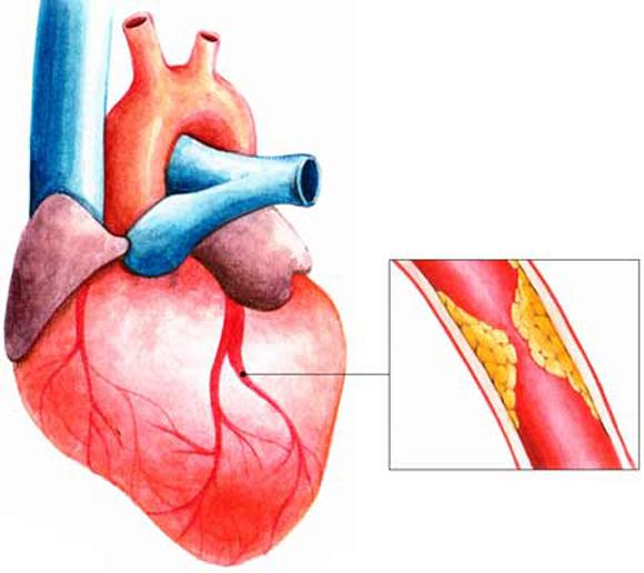 Theo quá trình lão hóa của cơ thể cùng chế độ ăn uống không hợp lý, dần dần các mạch máu sẽ bị xơ vữa, dẫn đến bệnh tim mạch