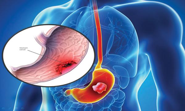 Mất cơ hội điều trị ung thư dạ dày vì thiếu tầm soát - Ảnh 1