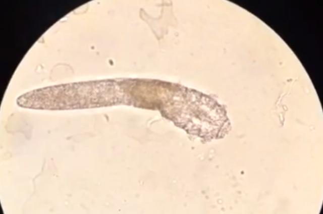 Ký sinh trùng đào hang khiến da mặt như bị mụn trứng cá - Ảnh 2