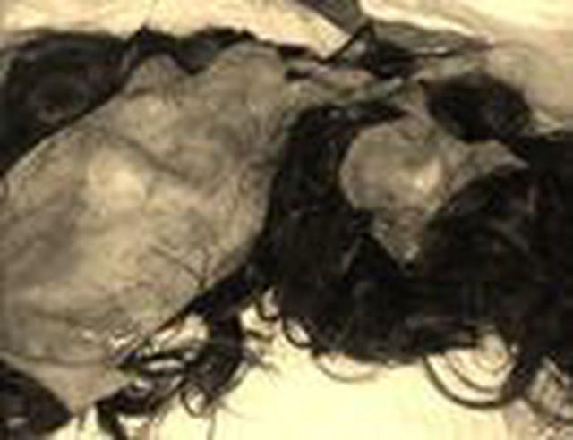 Bị máy xát lúa lột hết da đầu, người phụ nữ còn trơ hộp sọ - Ảnh 1