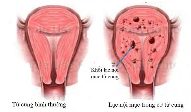 Những bệnh gây khó thụ thai ở phụ nữ - Ảnh 2