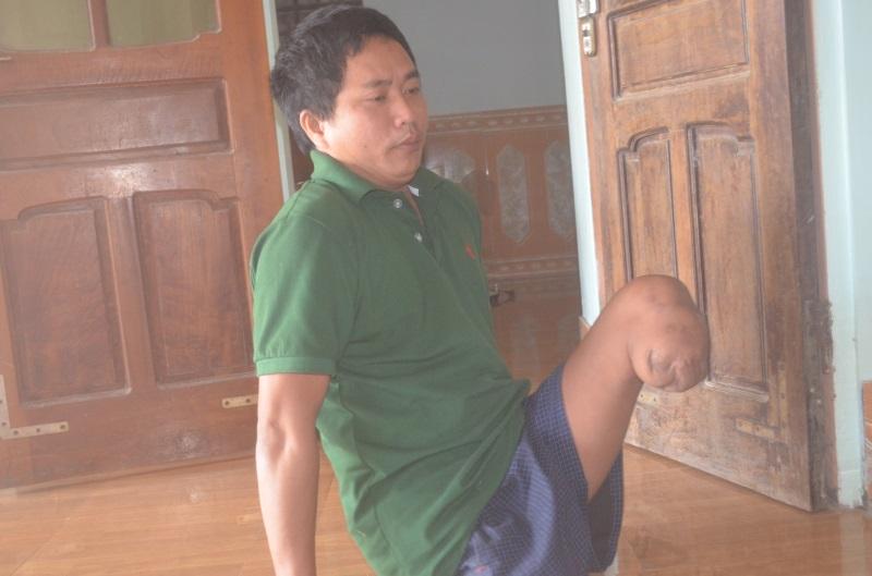 Bi kịch: Cụt hai chân sau tai nạn, người đàn ông bị vợ bỏ phải sống dựa vào mẹ già 70 tuổi - Ảnh 1