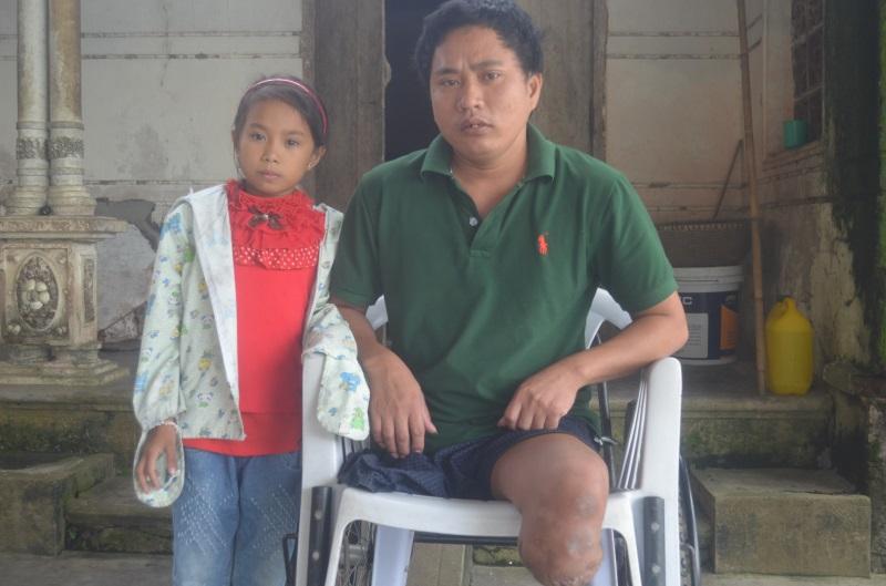 Bi kịch: Cụt hai chân sau tai nạn, người đàn ông bị vợ bỏ phải sống dựa vào mẹ già 70 tuổi - Ảnh 2