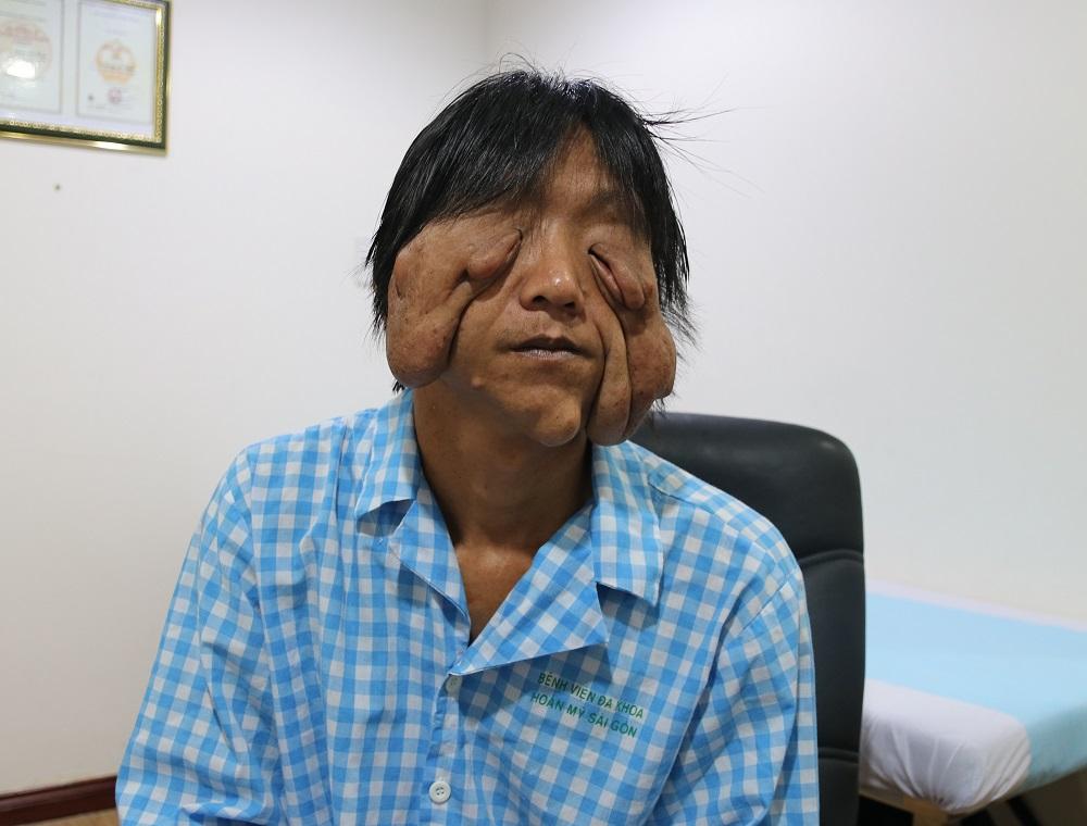 Tái tạo khuôn mặt biến dạng cho chàng trai dân tộc Dao 17 năm không ra khỏi nhà vì mặc cảm - Ảnh 1