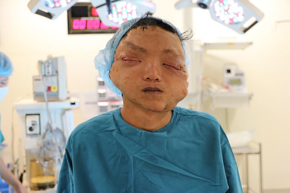 Tái tạo khuôn mặt biến dạng cho chàng trai dân tộc Dao 17 năm không ra khỏi nhà vì mặc cảm - Ảnh 4