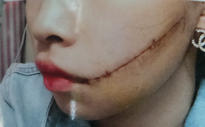 Cô gái có chồng bị người tình rạch nát mặt khi đang âu yếm vì nghi cặp bồ với nhiều người: Kẻ rạch mặt có thể bị 2-7 năm tù - Ảnh 1