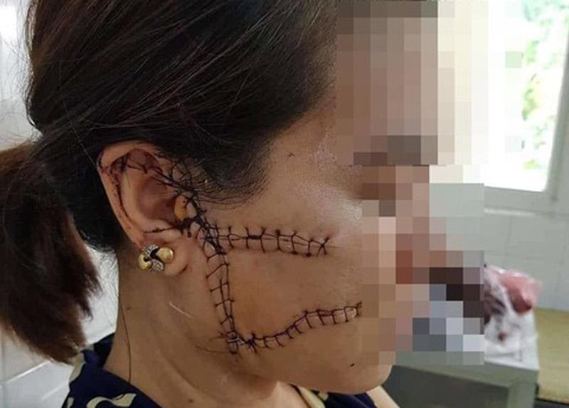 Cô gái có chồng bị người tình rạch nát mặt khi đang âu yếm vì nghi cặp bồ với nhiều người: Kẻ rạch mặt có thể bị 2-7 năm tù - Ảnh 2