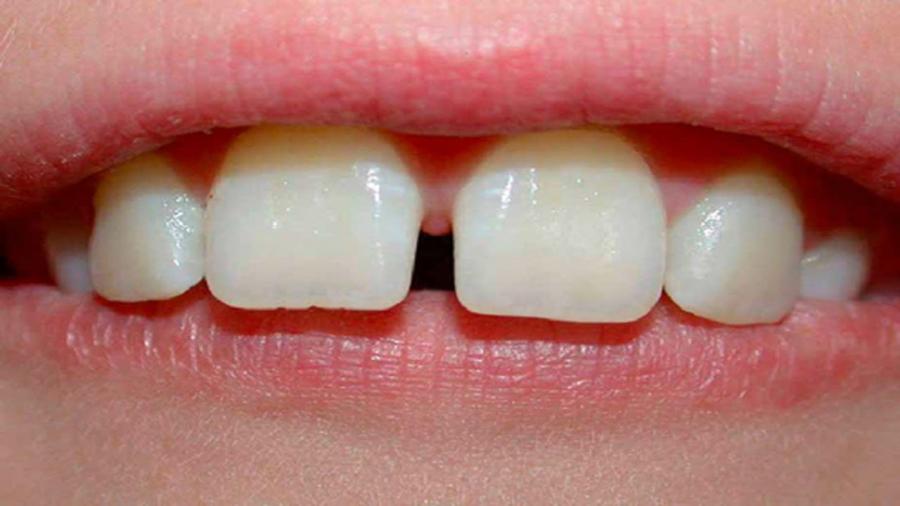 Đoán vận mệnh sướng khổ qua hàm răng - Ảnh 4