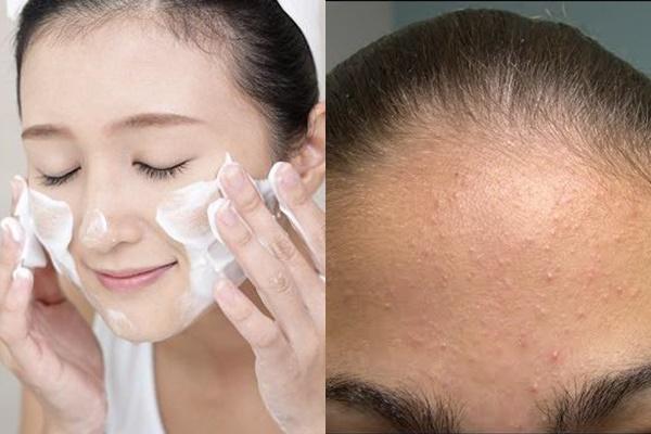 Điều trị mụn ẩn dưới da dễ dàng hơn khi rửa mặt sạch sẽ