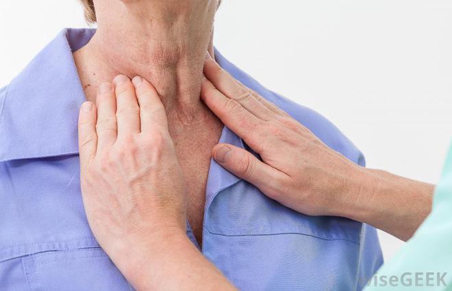 Nhớ các dấu hiệu ung thư vòm họng giai đoạn đầu, cơ hội sống sót lên tới 72% - Ảnh 3