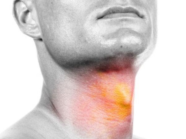 Nhớ các dấu hiệu ung thư vòm họng giai đoạn đầu, cơ hội sống sót lên tới 72% - Ảnh 4