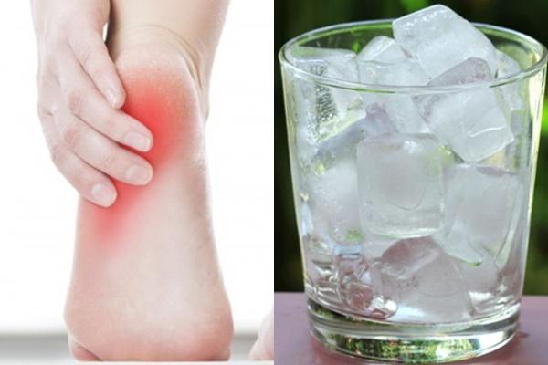 Chườm đá lạnh giúp giảm đau gót chân nhanh chóng