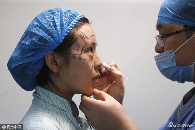 Sốc: Cô gái 5 lần 'đập đi xây lại' trong suốt 10 năm để có khuôn mặt giống Phạm Băng Băng - Ảnh 2