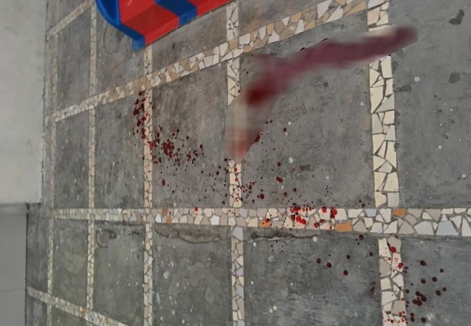 Bị gạch rơi vào đầu, bé 3 tuổi tử vong thương tâm khi đang chơi dưới sân chung cư - Ảnh 1