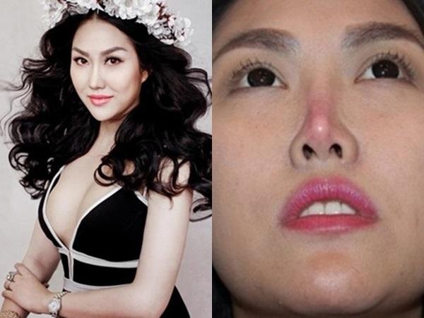 Những sao Việt 'dọa' khán giả vì gương mặt khác lạ khi phẫu thuật thẩm mỹ hỏng - Ảnh 8