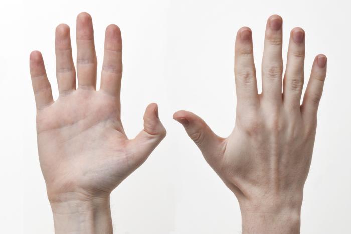 Nam giới có ngón tay trỏ ngắn hơn ngón áp út quá nhiều thì nguy cơ ung thư tuyến tiền liệt sẽ cao hơn