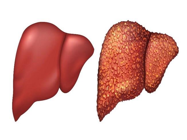 Viêm gan là bệnh do nhiều virus gây ra, phổ biến nhất là  viêm gan A, B và C