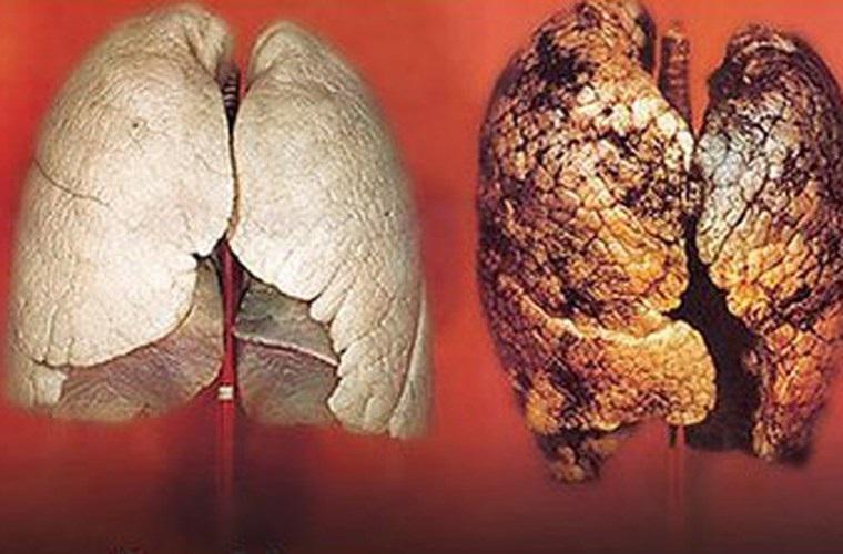 Mỗi ngày 2 thìa này, phổi nám đen do hút thuốc lâu năm cũng phục hồi như mới - Ảnh 2