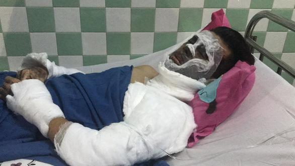 Việt kiều bị tạt axit rồi cắt gân chân: 'Kẻ ác ra tay rất nhanh' - Ảnh 1