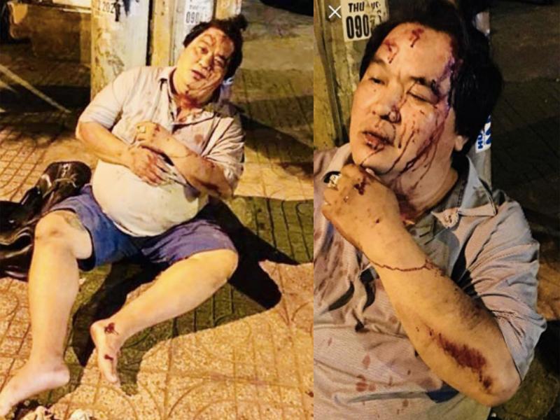 Hoàng Mập bị tông xe, đầu bê bết máu phải nhập viện lúc nửa đêm - Ảnh 1