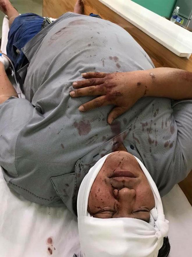 Hoàng Mập bị tông xe, đầu bê bết máu phải nhập viện lúc nửa đêm - Ảnh 2