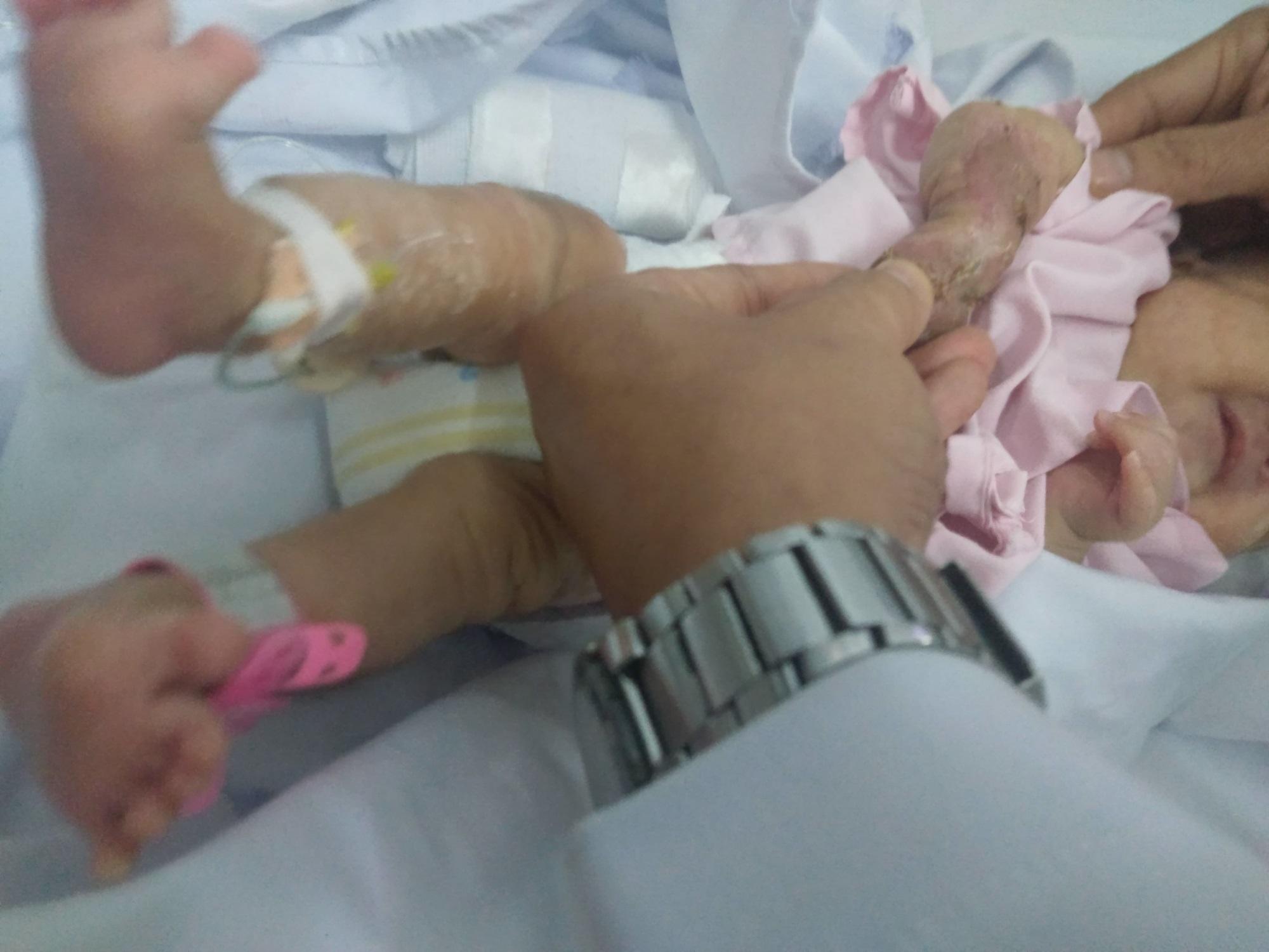 Cứu cánh tay cho bé sinh non bị hoại tử do tắc mạch máu, nhiễm trùng huyết - Ảnh 2