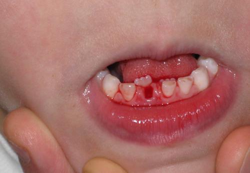 Hậu quả khi mất răng sữa sớm - Ảnh 1