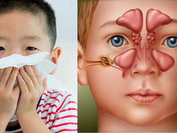 3 bài thuốc dân gian điều trị viêm xoang ở trẻ hiệu quả - Ảnh 1