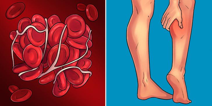 Nhìn biểu hiện cơ thể đoán biết 10 bệnh nguy hiểm dễ gặp hiện nay  - Ảnh 10