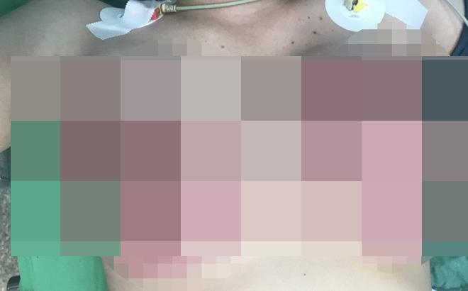 Cô gái 8X bị hoại tử hai vú sau khi đi nâng ngực ở thẩm mỹ viện 'chui' - Ảnh 1