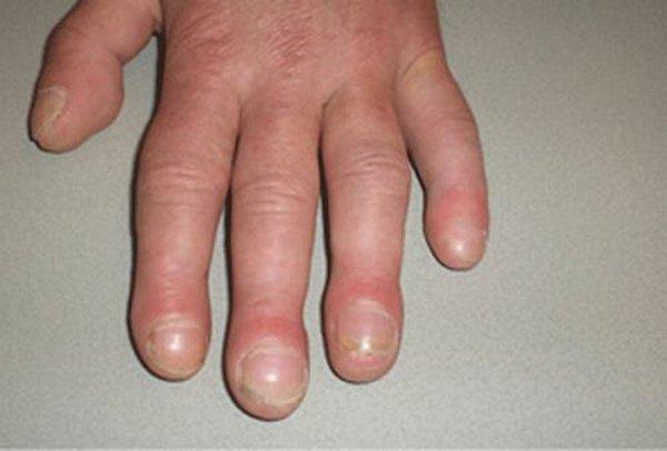 Những dấu hiệu ở móng tay cảnh báo bạn mắc bệnh nặng, có cả ung thư - Ảnh 1