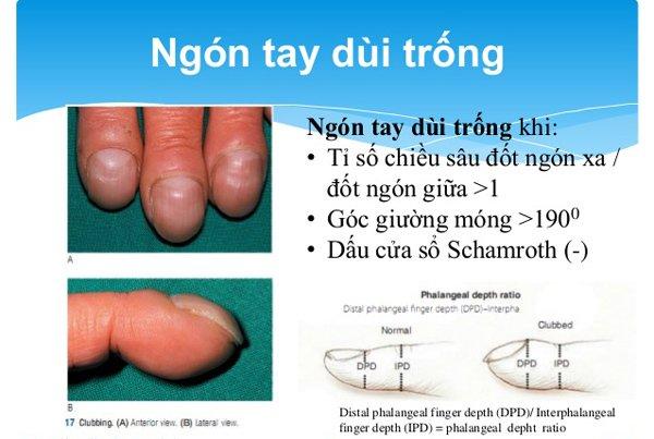Những dấu hiệu ở móng tay cảnh báo bạn mắc bệnh nặng, có cả ung thư - Ảnh 2