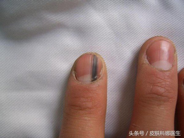 Những dấu hiệu ở móng tay cảnh báo bạn mắc bệnh nặng, có cả ung thư - Ảnh 3