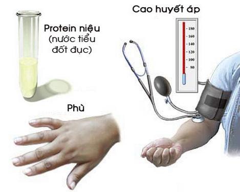 Nhận biết tăng huyết áp thai kỳ - Ảnh 1