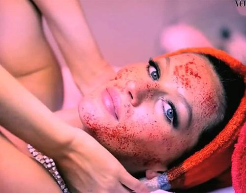 Cô gái 'chơi trội' dùng máu tươi để tiêm lên da mặt, nhưng kết quả sau đó khiến ai cũng bất ngờ - Ảnh 2