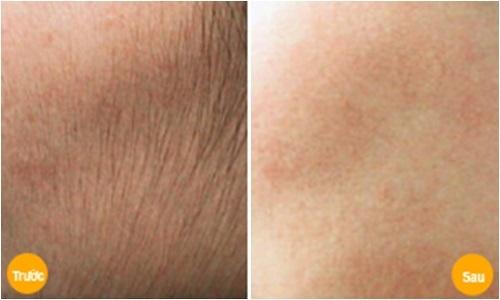 Bí kíp 'thần thánh' tẩy sạch lông mặt không đau, không rát để lại làn da trắng mịn chỉ sau 15 phút - Ảnh 4