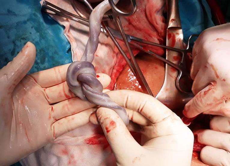 Cứu sản phụ miền Tây suy thai do dây rốn quấn cổ thai nhi khi chưa chuyển dạ - Ảnh 2