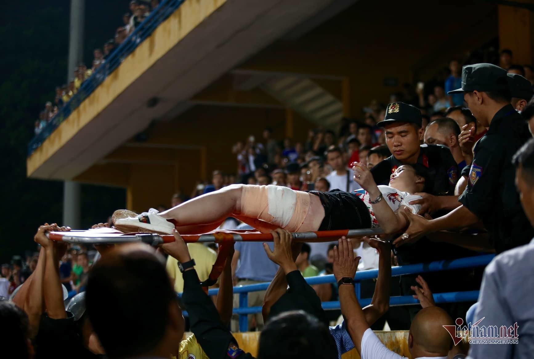 Xử lý thế nào vụ cổ động viên nữ bị bỏng tận xương, phải đi cấp cứu do trúng pháo sáng trên sân Hàng Đẫy? - Ảnh 1