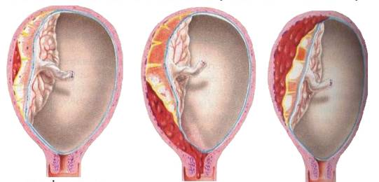 Đau bụng dữ dội lúc mang bầu cảnh báo dấu hiệu bong nhau thai - Ảnh 1