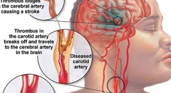 Đột quỵ gia tăng: 4 dấu hiệu ban đầu cần nhớ - Ảnh 2
