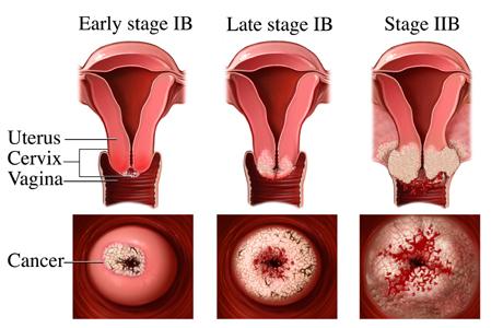 Ung thư cổ tử cung: Bác sĩ cảnh báo dấu hiệu 'vàng' phát hiện bệnh  - Ảnh 1