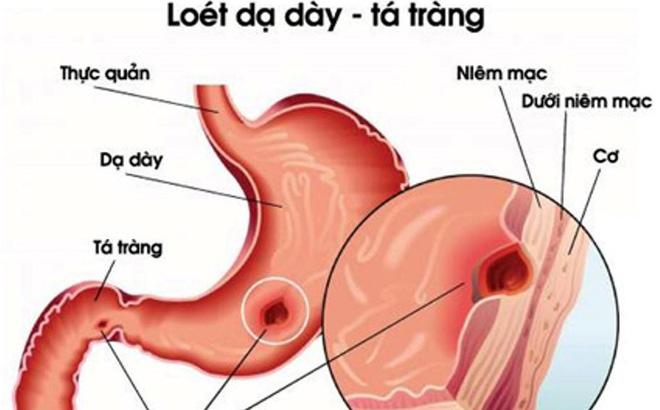 Chuyên gia tiêu hóa chỉ ra lý do khiến bệnh viêm dạ dày tăng cao - Ảnh 1