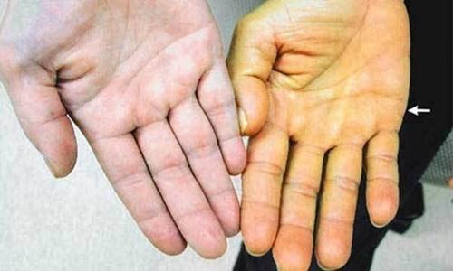 Vàng bàn tay: Dấu hiệu cảnh báo bệnh ung thư 'Top 1' ở Việt Nam - Ảnh 1