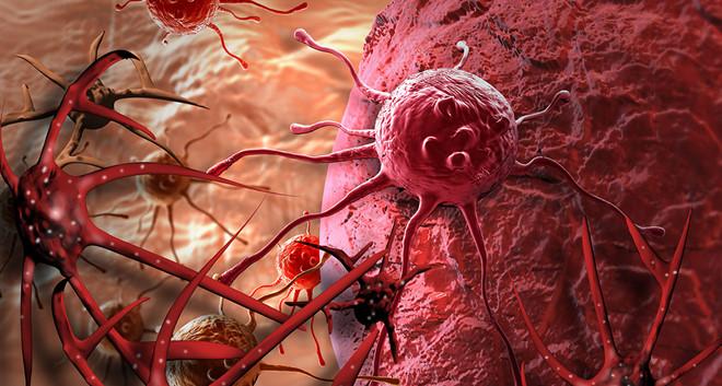 Nhiều người mắc cùng lúc 2 – 3 bệnh ung thư - Ảnh 1
